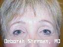endoscopic-brow-lift-with-upper-and-lower-eyelid-liftblepharoplasty-nashville