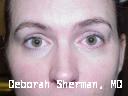 eyelid-and-orbital-tumors-nashville