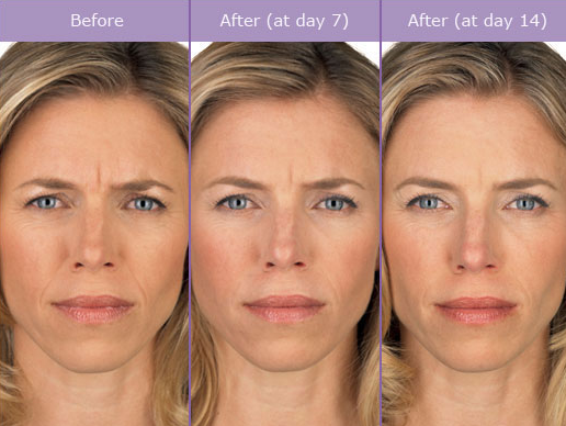 Botox Cosmetic in Nashville